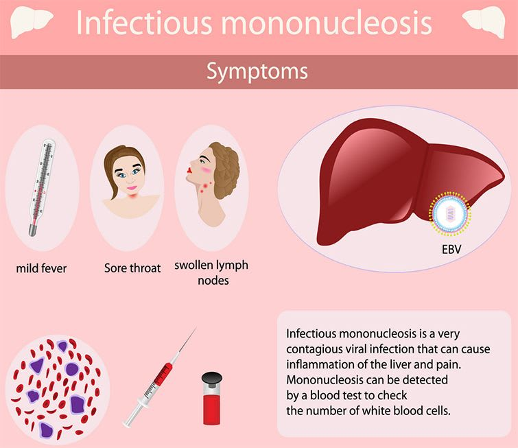 What Causes Infectious Mononucleosis (Kissing Disease), What Are The Symptoms Of Infectious Mononucleosis (Kissing Disease)