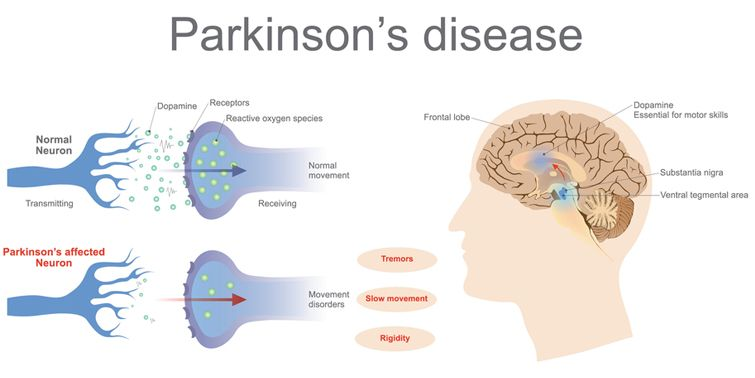 Scientists took a shot at distinguishing the biological procedures that promote to Parkinson's disease symptoms because of exposure to certain metals.