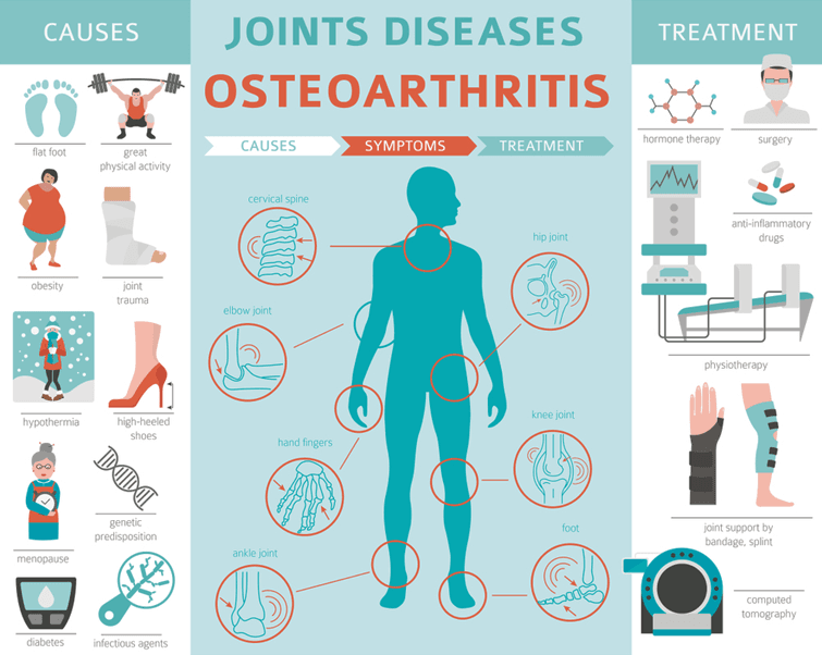 Osteoarthritis (OA), Knee, Causes Symptoms, Cure, Treatment