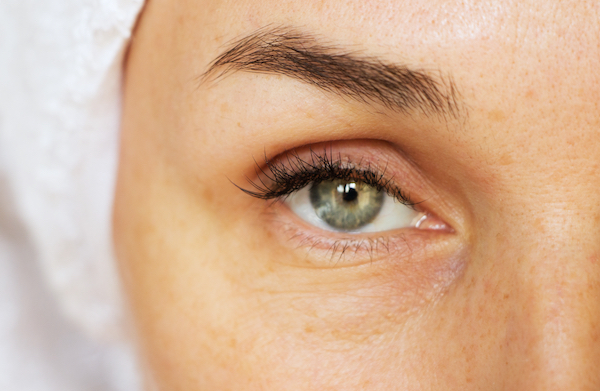Wrinkles - Signs You Need More Collagen