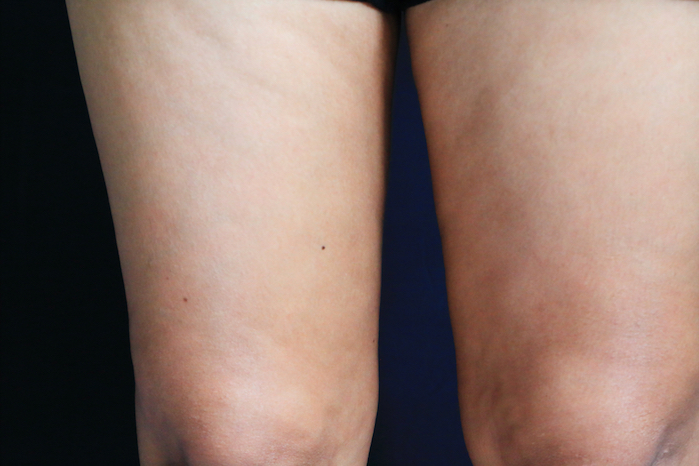 Cellulite - Signs You Need More Collagen
