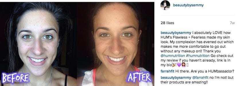 Sammy's skin Before & After with HUM's Flawless + Fearless - The Wellnest by HUM Nutrition