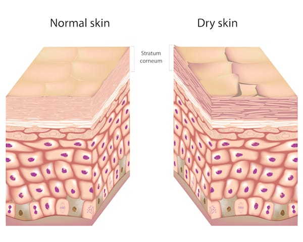 can dry skin be cured