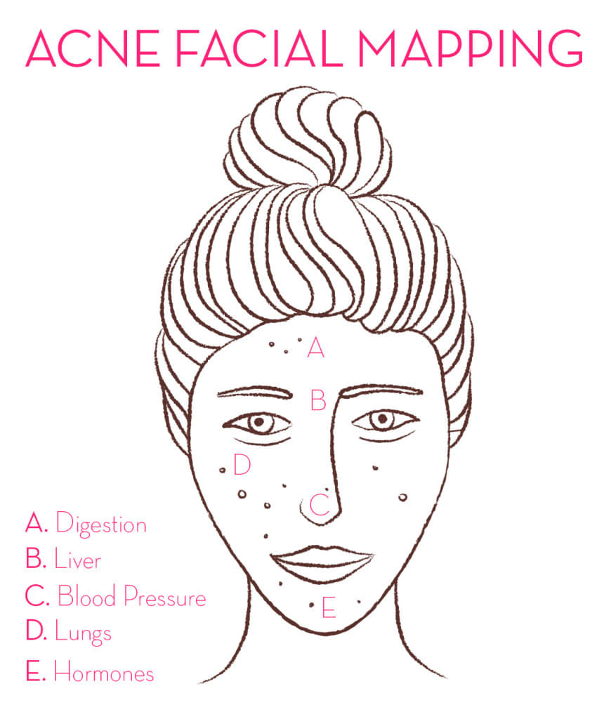 Facial Mapping - Use to find the best vitamins for acne