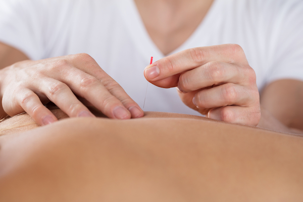 Acupuncture - Allergy Hacks - HUM Nutrition - WELLNEST