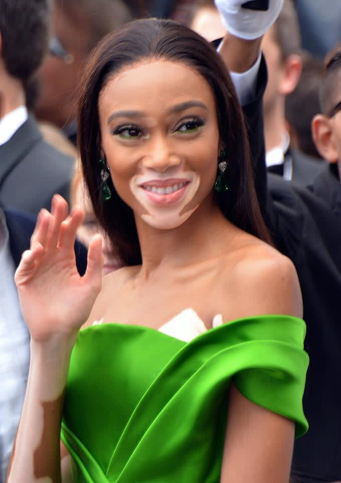 A photo of supermodel Winnie Harlow smiling and waving to the camera. Georges Biard, Winnie Harlow Cannes 2018, CC BY-SA 4.0