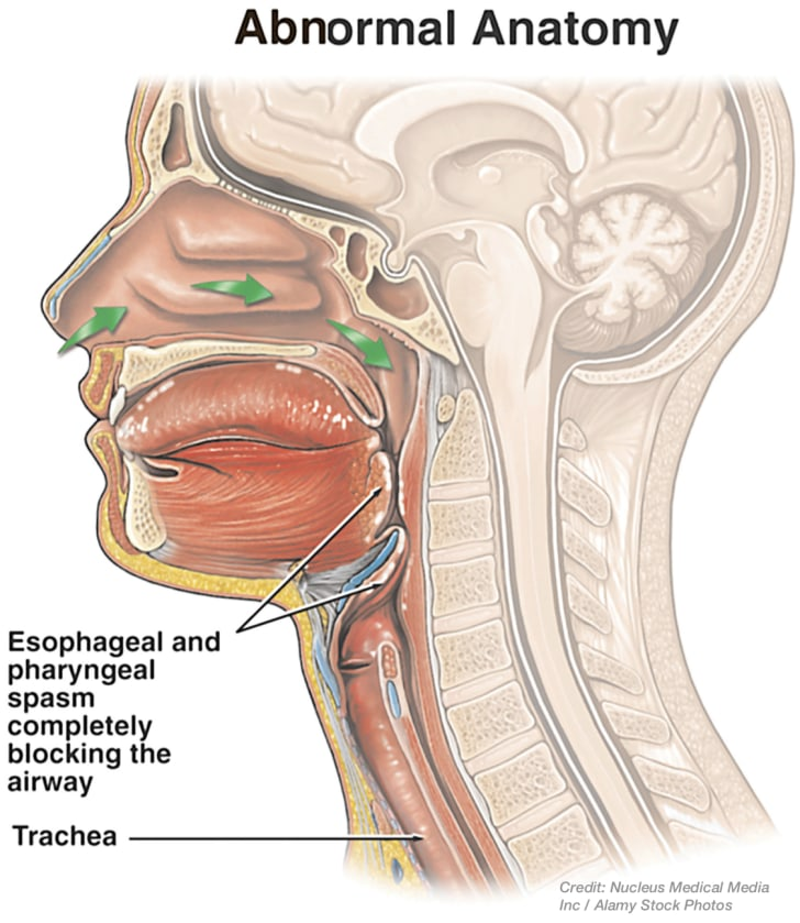 Abnormal anatomy of the throat