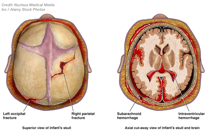 Birth Injury - Skull fractures