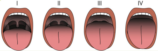 Graphic of airway types