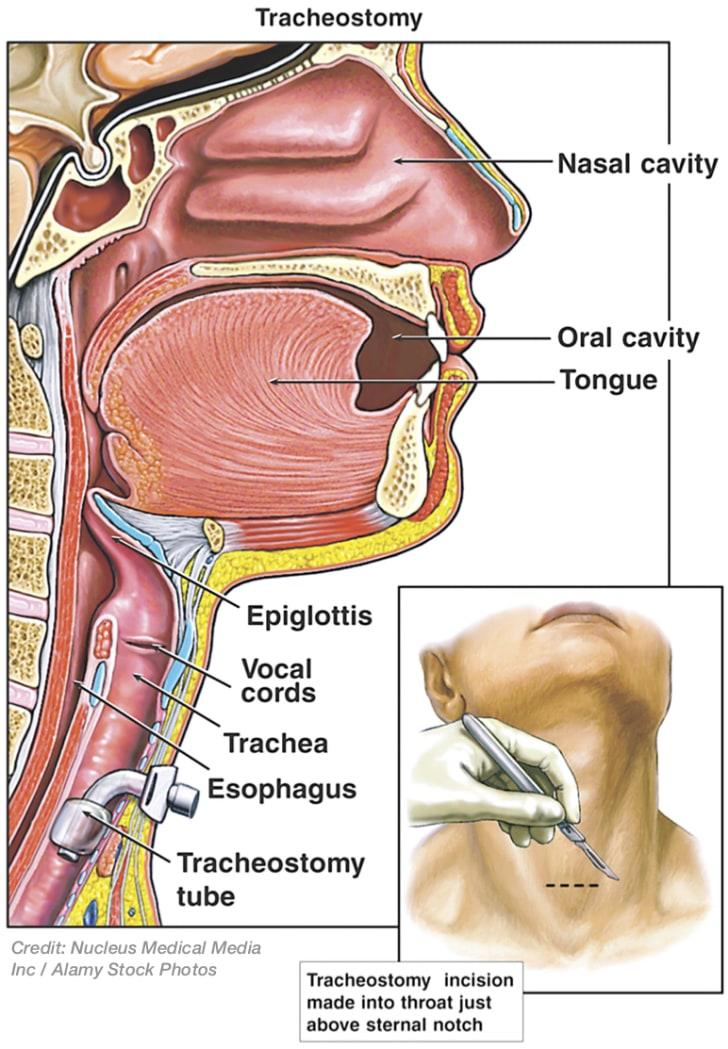 Illustration showing tracheostomy
