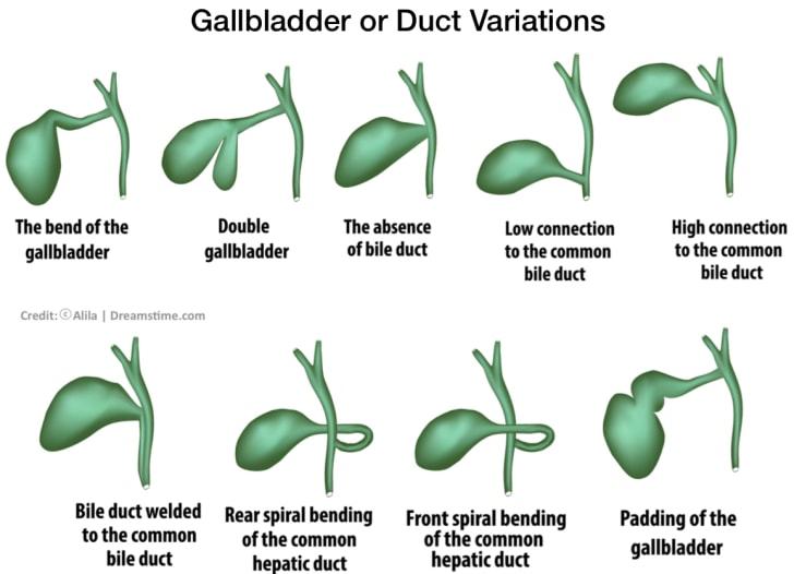 Gallbladder or Duct Variations
