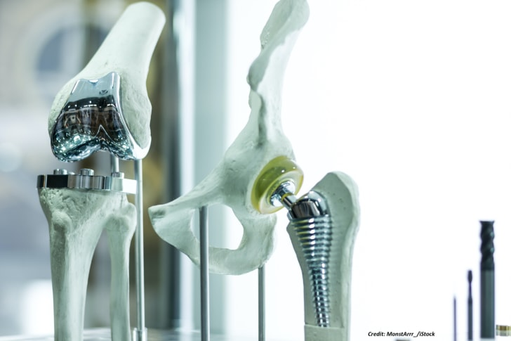 Hip and knee replacements