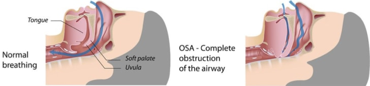 Illustration showing complete obstruction of airway