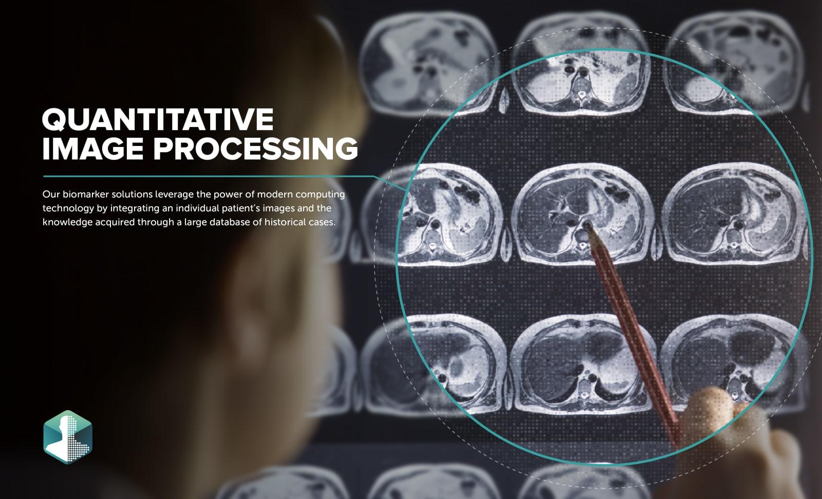 Imbio Data Points Image Treatment One