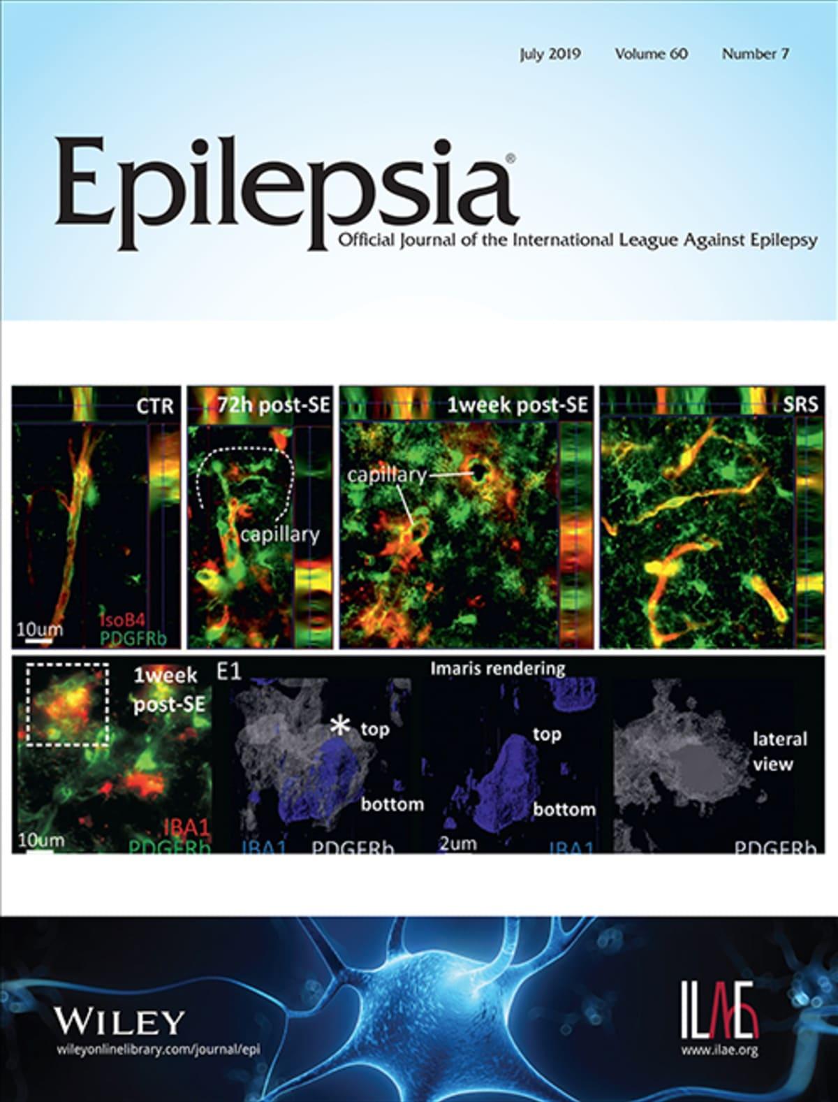 Epilepsia® – A Journal of the ILAE // International League Against