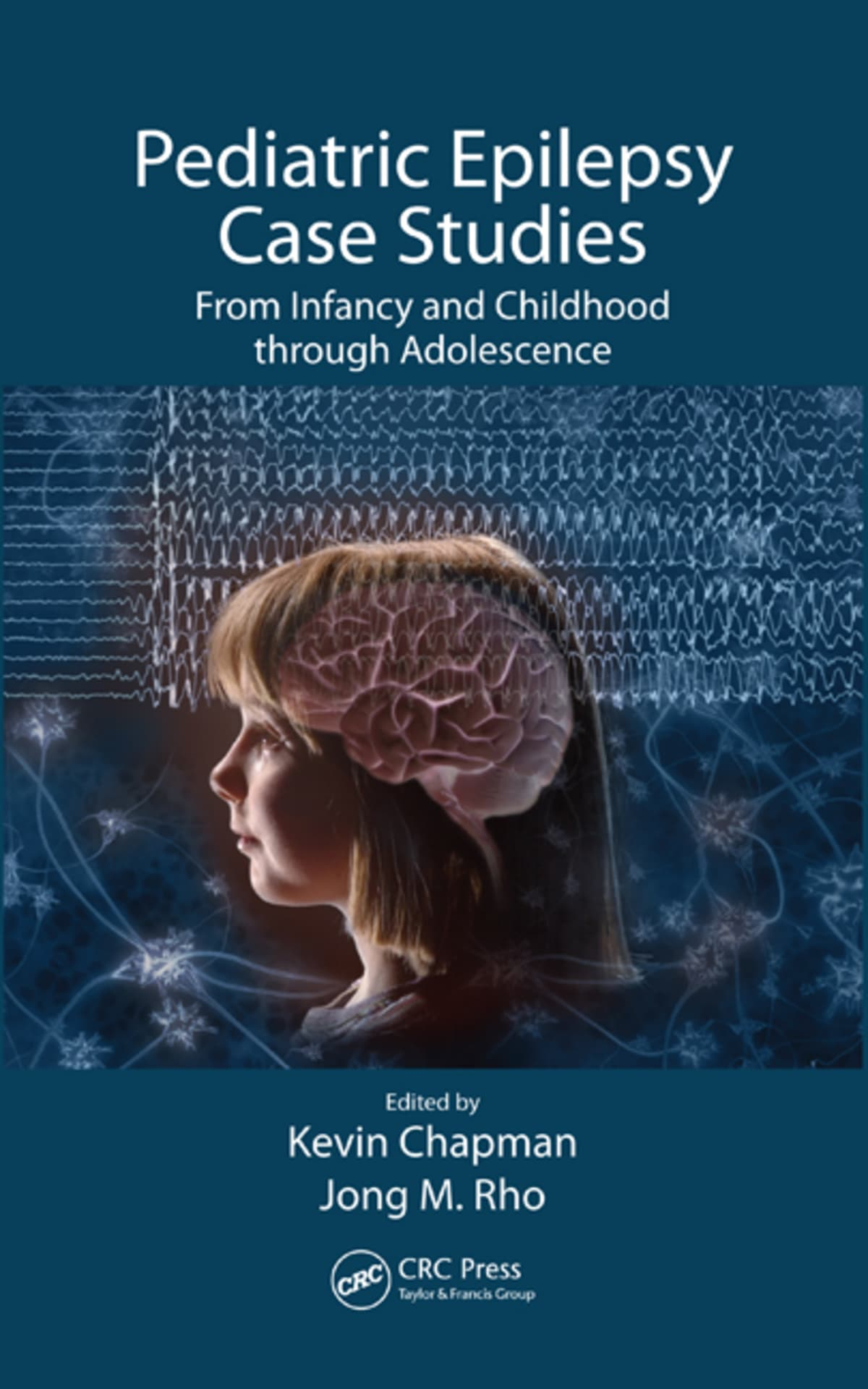 Pediatric Epilepsy Case Studies: From Infancy and Childhood