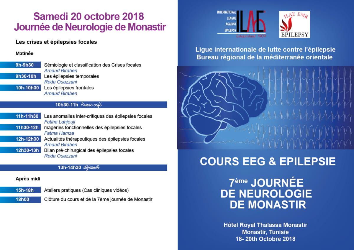 Cours d'EEG et d'épilepsie // International League Against Epilepsy