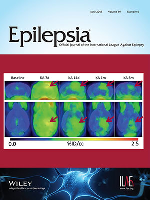 Epilepsia cover June 2018
