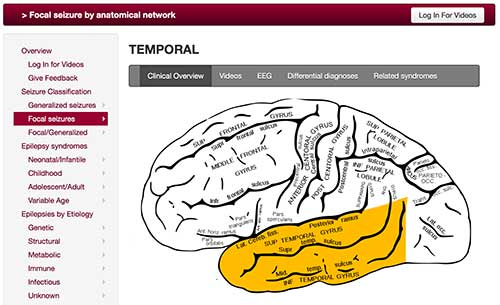 Focal seizures by anatomical network (temporal)