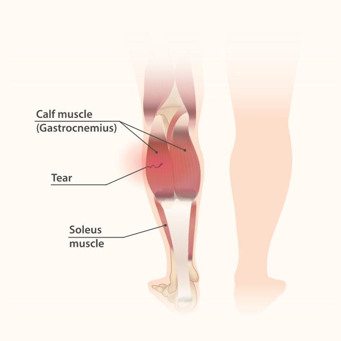 A calf muscle strain