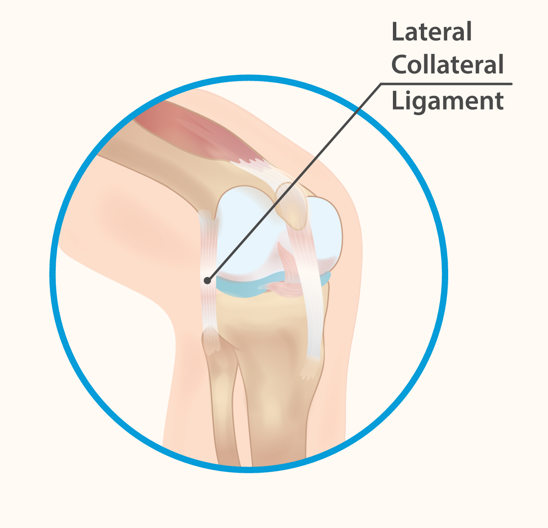 Lateral collateral ligament