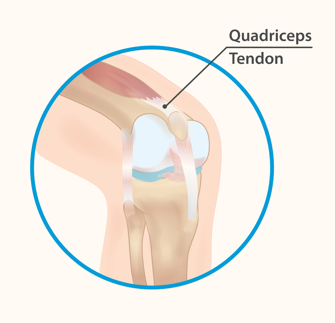 Quadriceps tendon tendon