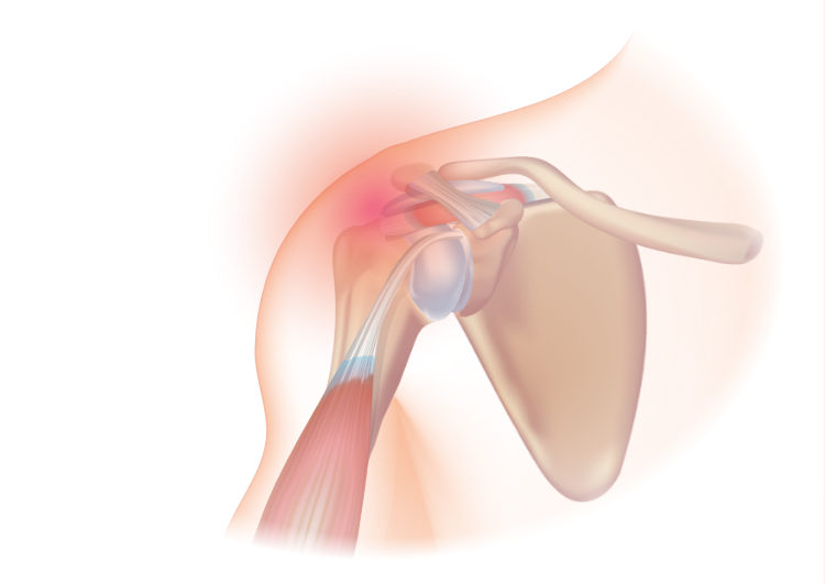 A rotator cuff injury.