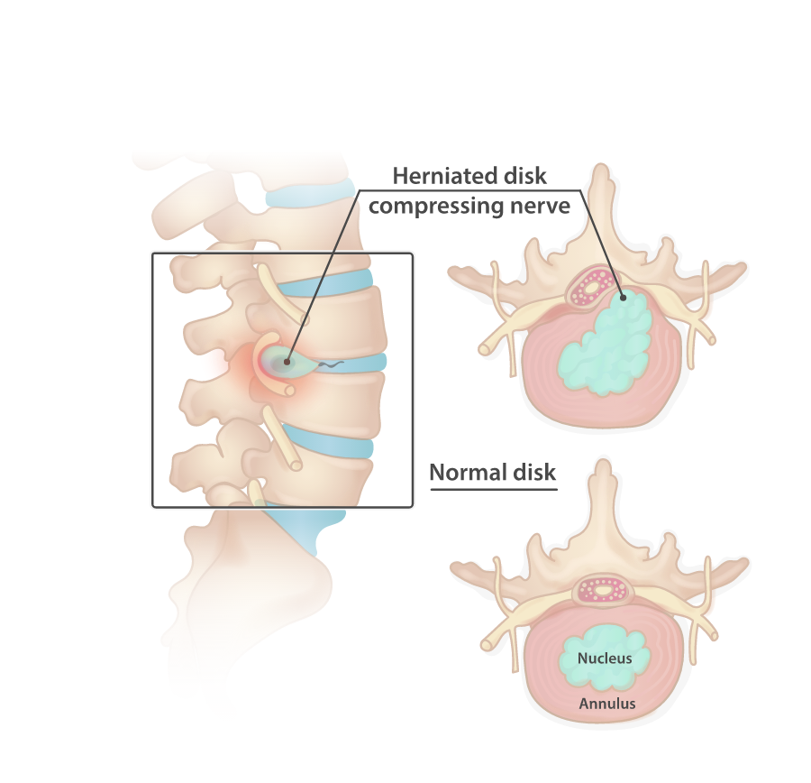 A healthy and a herniated disk.