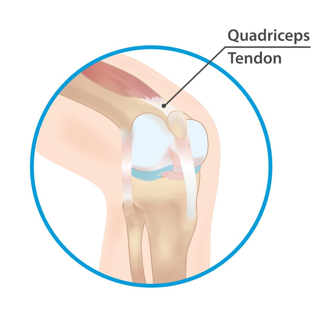 Quadriceps tendon tendon