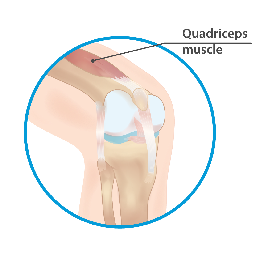 Quadriceps muscle