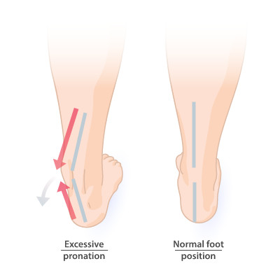 Pronation of the foot