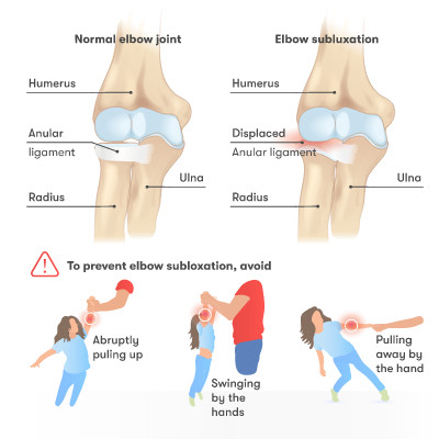 Elbow subluxation