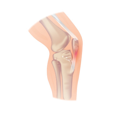 Pain in the soft tissue of your knee