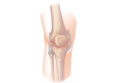 Pain in your knee joint