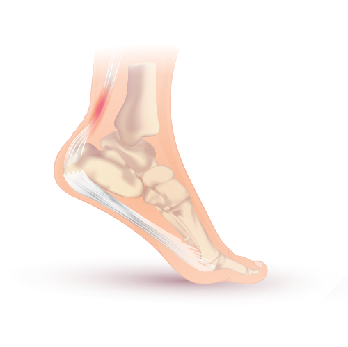 Inflammation of the Achilles tendon
