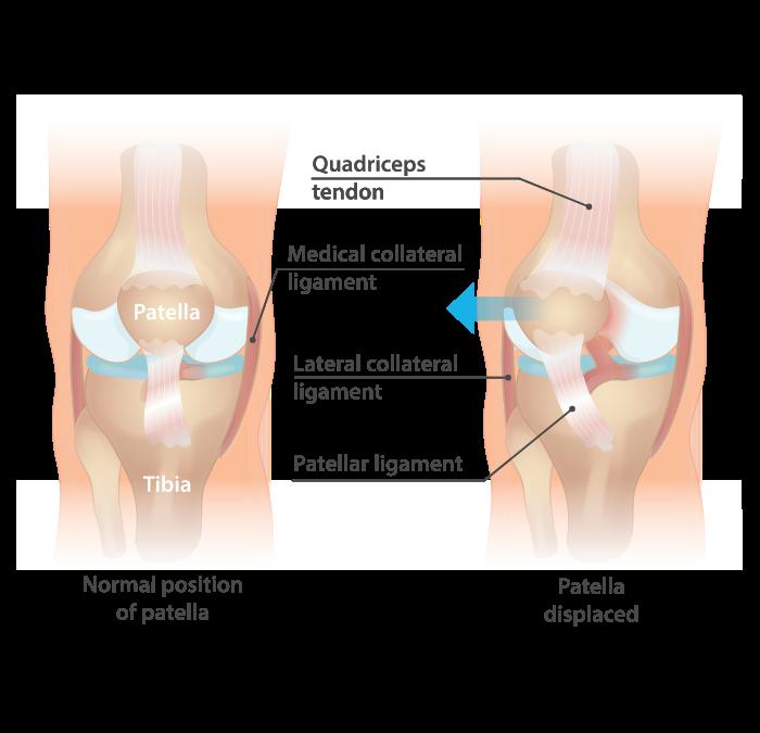 Dislocated kneecap / Patellar dislocation