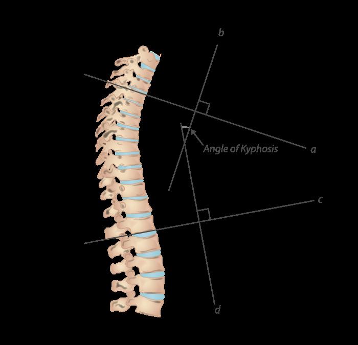 The kyphosis angle