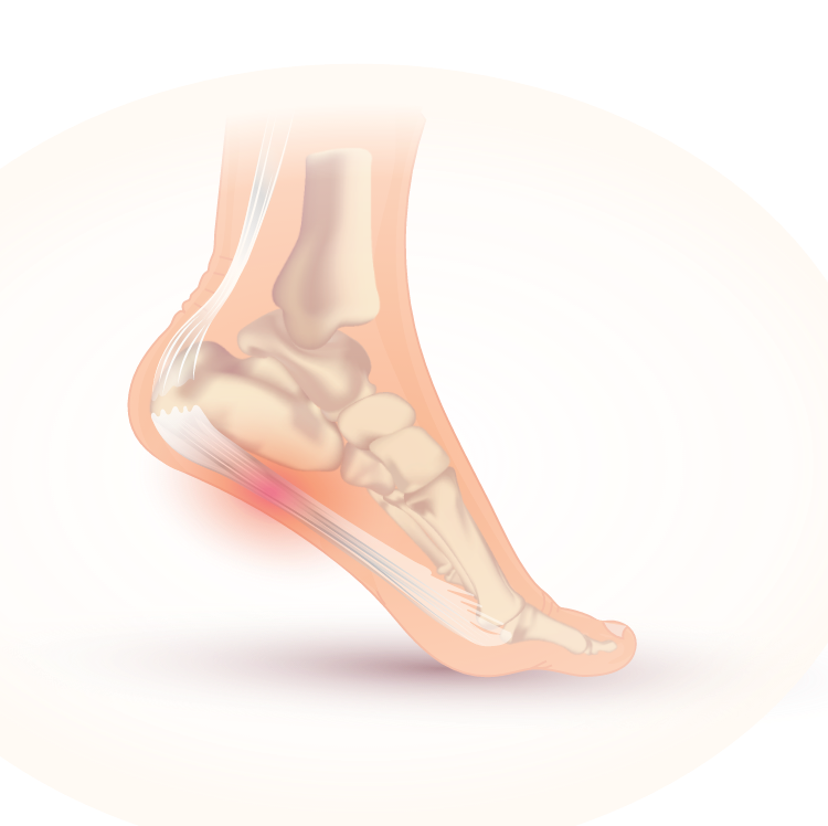 Plantar fasciitis is common among runners.