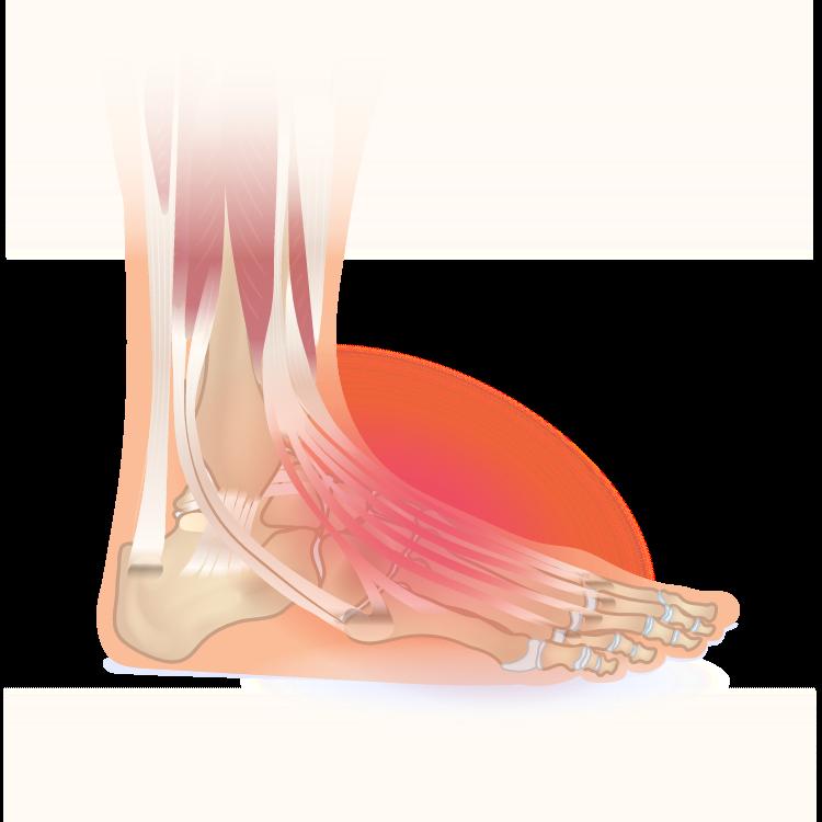 Extensor tendonitis