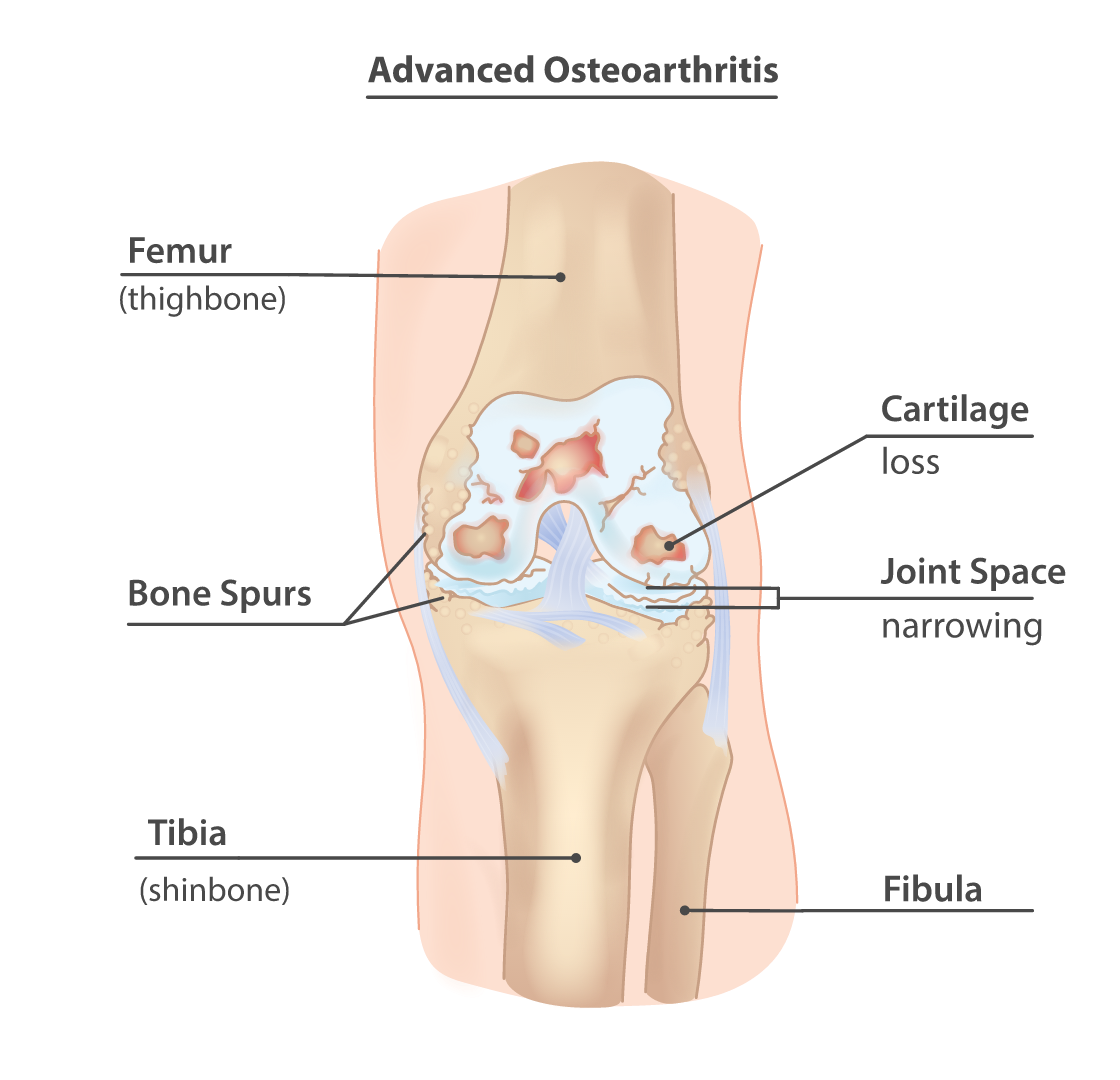 Bone spurs in the knee with advanced osteoartritis