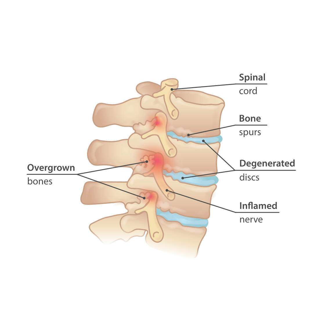 Bone spurs in the spine
