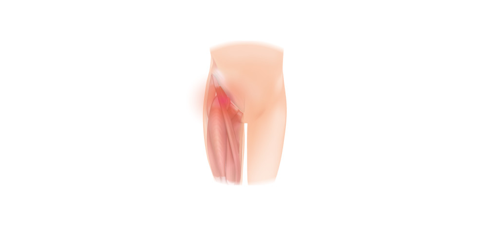 Fem øvelser mod smerter i hoften og lysken