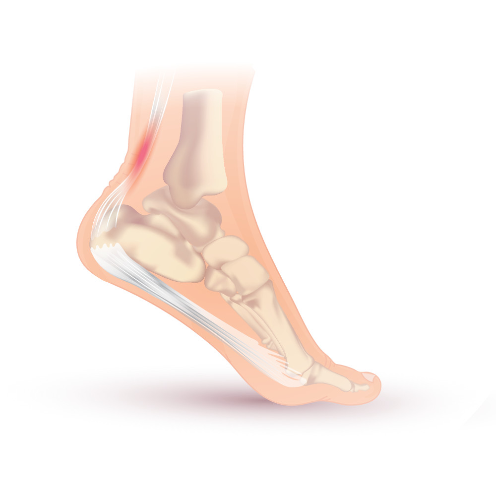 Achilles tendonitis pain: causes, symptoms, and exercises