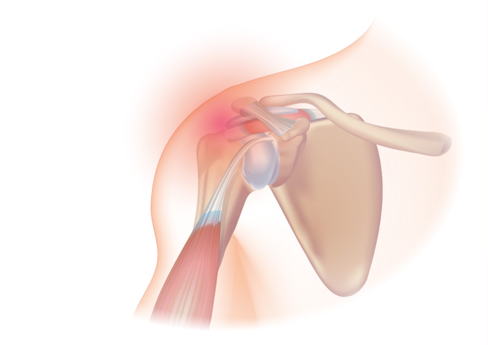 Treatment Of Shoulder Pain Rotator Cuff Syndrome