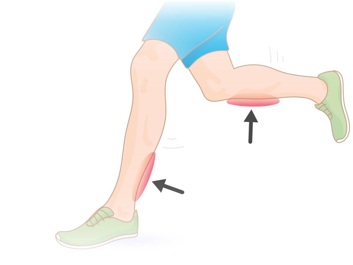 shoes causing shin splints