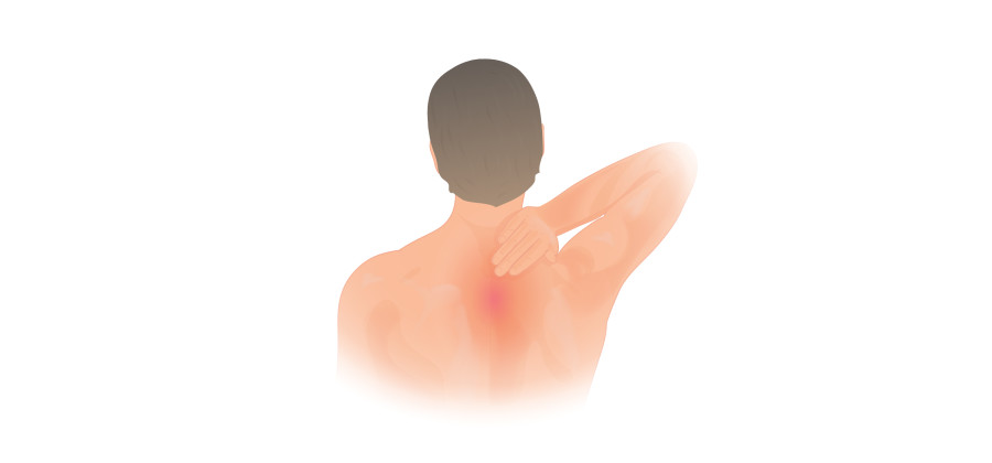 14 Exercises for Upper Back Pain