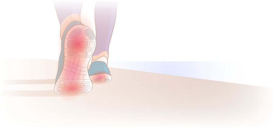 Running with Foot and Heel Pain