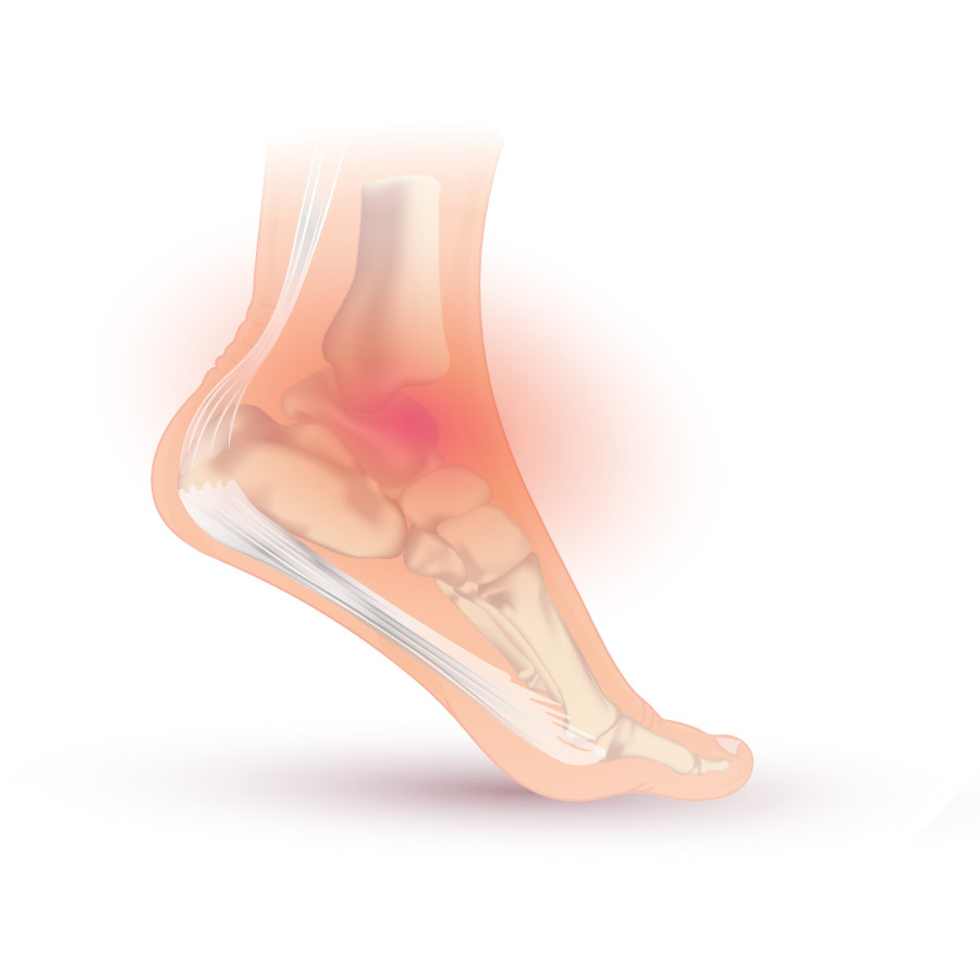 What is a sprained ankle? symptoms and treatment options.
