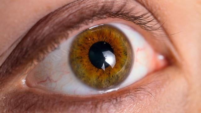 Penyebab dan Gejala Glaukoma