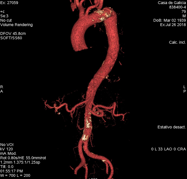Aneurisma de aorta: la evolución del tratamiento